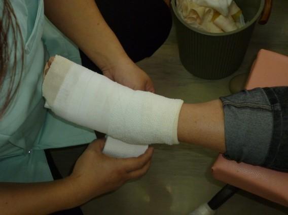 足を捻り骨折された患者さん
